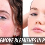 photoshop remove_blemishes_in_photoshop